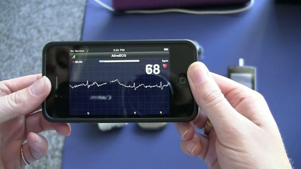 AliveCor biedt een ECG app
