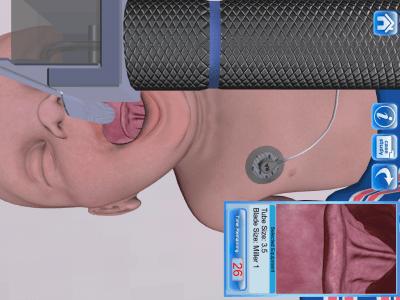 Infant Endotracheal Intubation