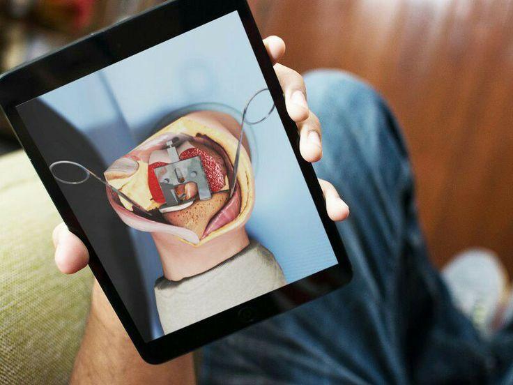Onder weg op de iPad een knieprothese bestuderen