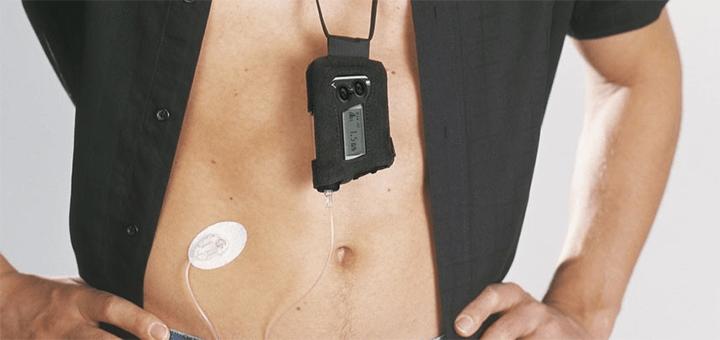 Compact pompsystemen als alternatief voor insuline spuiten
