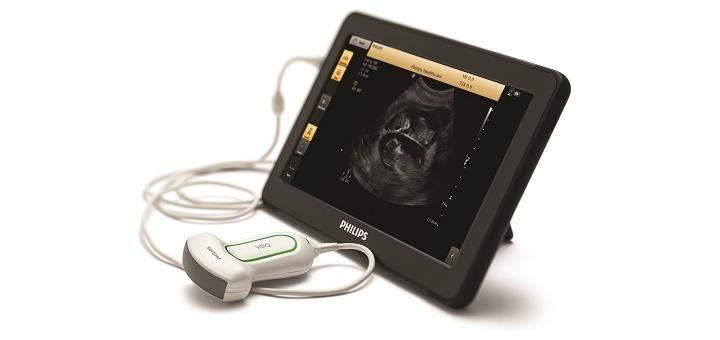 Philips VISIQ handheld echografie