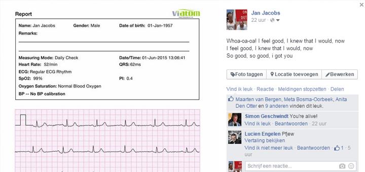 ECG delen op Facebook of Twitter: what's the point?
