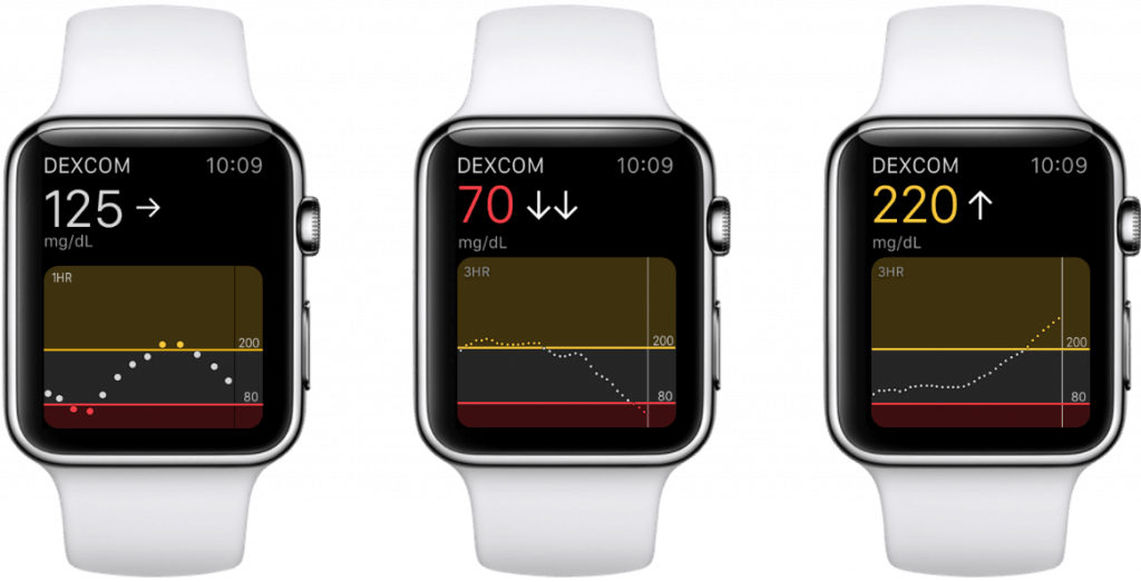 Dexcom apple watch