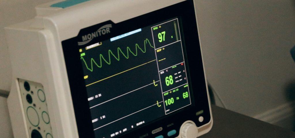 ECG monitor hart ritme