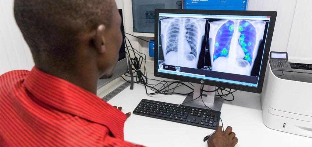 Thirona software in het buitenland ingezet voor opsporing van tuberculose