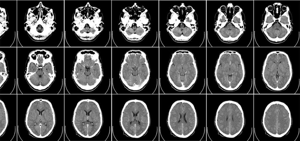 CT-scan (Foto: Uppsala University Hospital - Mikael Häggström)