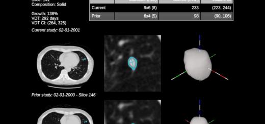 Aidence: detectie van longnodules met kunstmatige intelligentie